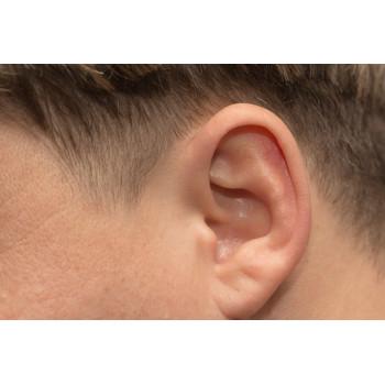 Epilation des oreilles homme