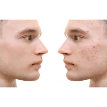 Microneedling 1 séance visage complet
