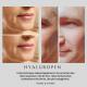 Hyaluropen injection sans aiguille 1 séance 2ML