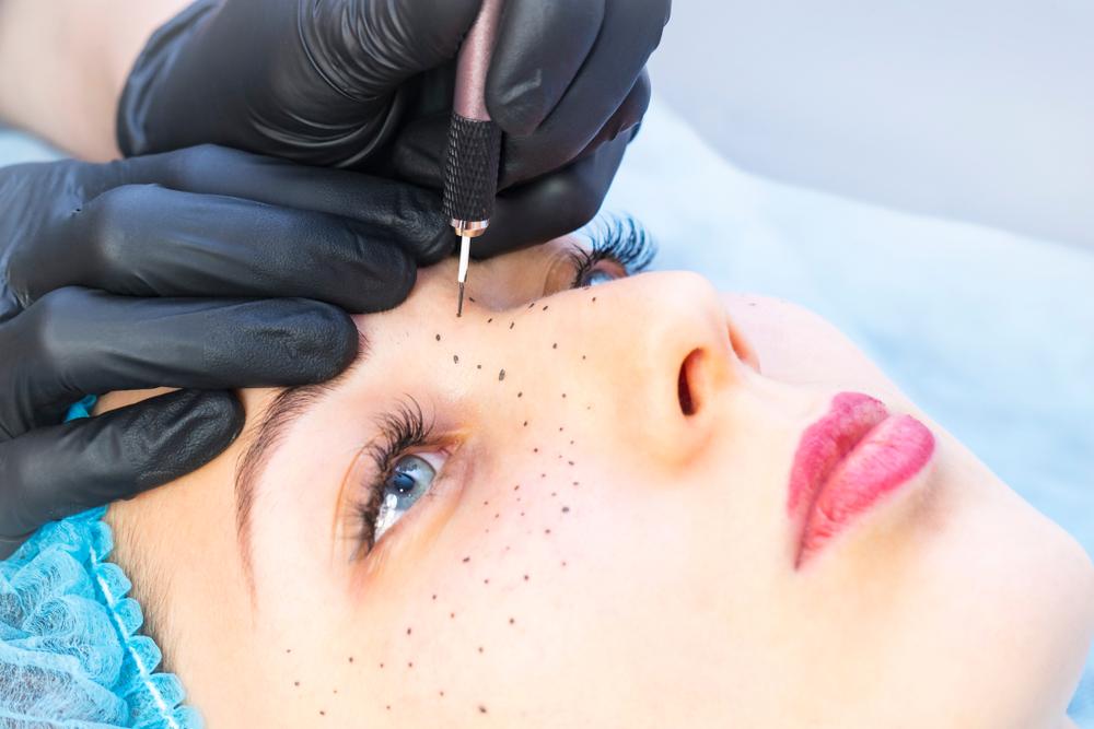tâches rousseurs maquillage permanent